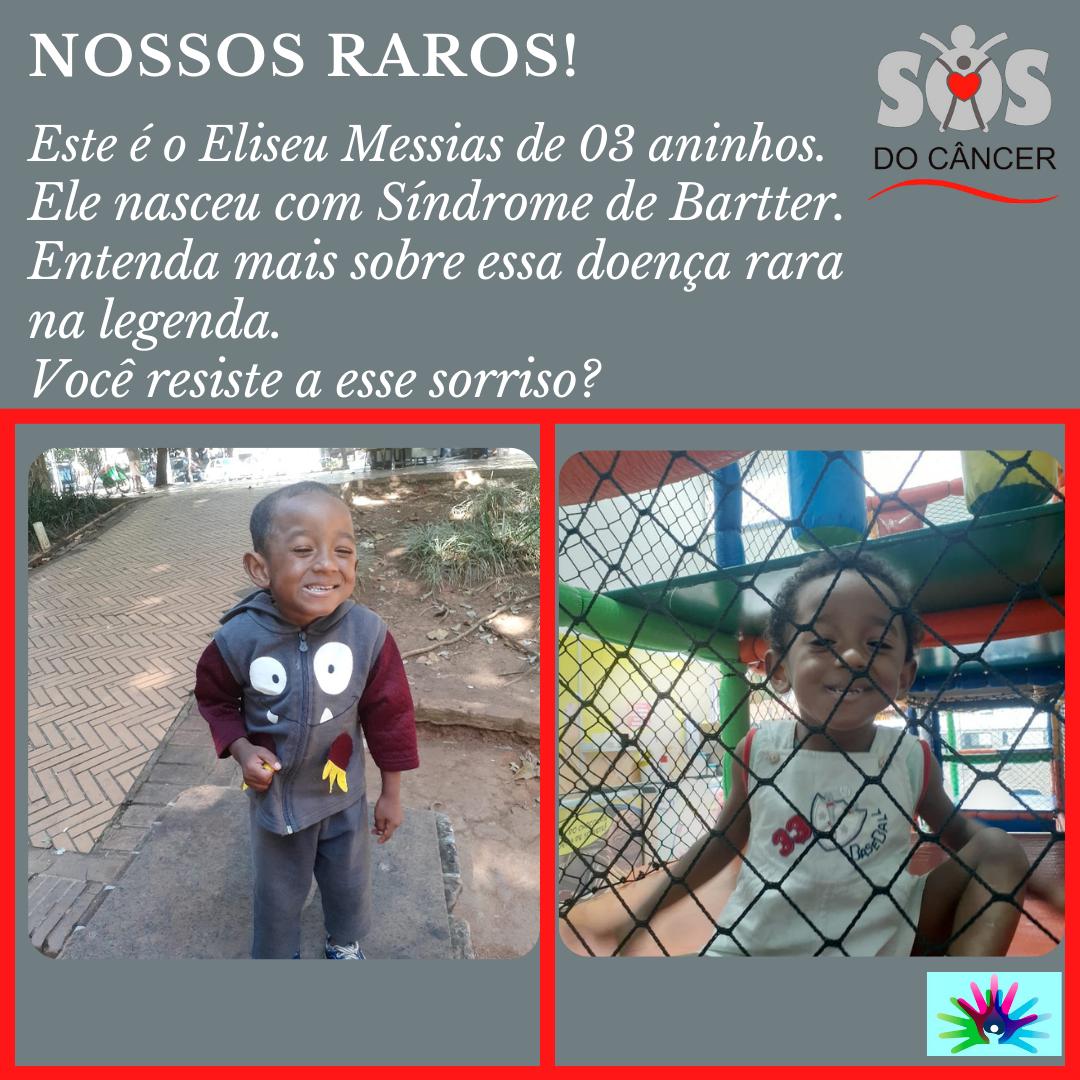 A SOS DO CÂNCER ATENDE AOS RAROS!